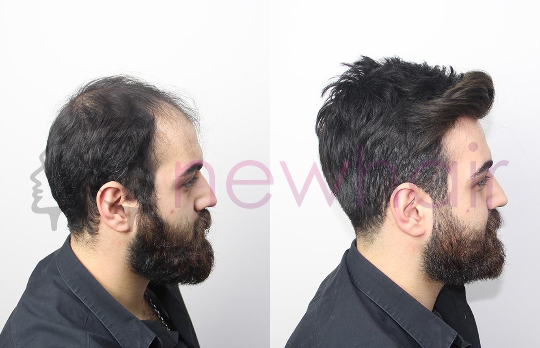 Protez saç, saç protezi, kemoterapi, saç dökülmesi, medikal saç, saçkıran, kemoterapide saç dökülmesi, Saç gürleştirme, takma saç