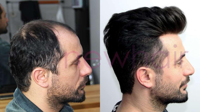 Saç Gürleştirme Çözümleri
