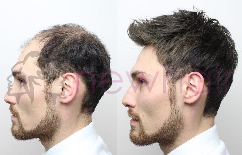 Saç Ekimi, saç protezi