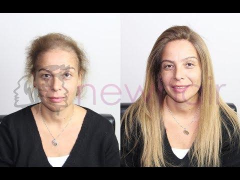 Kadın protez saç