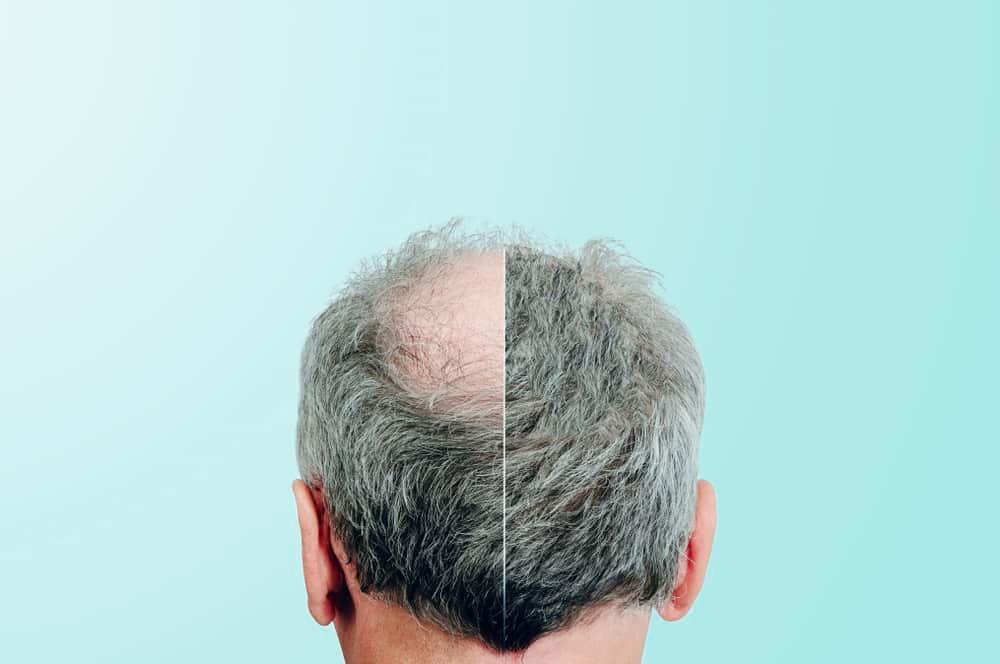 Saç Ekimi Mi, Saç Protezi Mi?